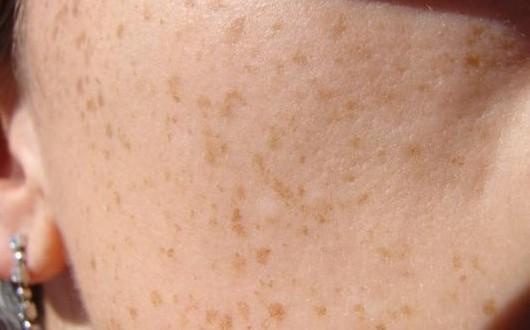 وصفة لإزالة البقع من الوجه