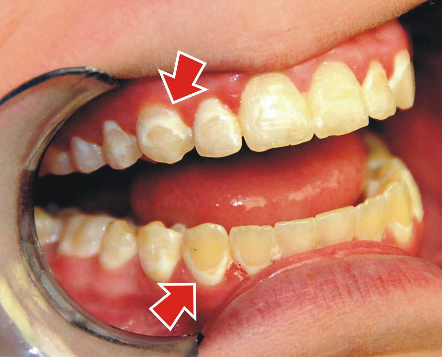 أطعمة تسبب لك بقع الأسنان..فتجنبها قدر الإمكان