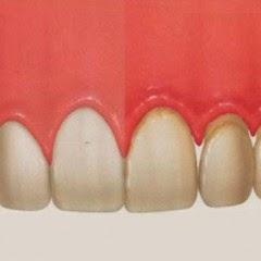 صحة اللثة والطريقة السليمة لتنظيف الأسنان