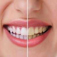 وصفات طبيعية لتبيض الاسنان...في منزلك يا جارتي