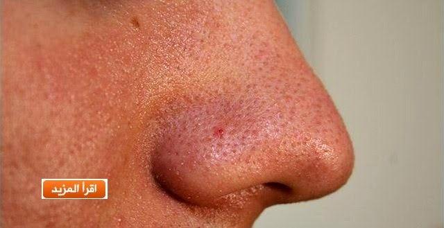 أسهل طريقة لإزالة الرؤوس السوداء في الوجه والأنف