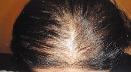 عندك مشكل ديال تساقط الشعر؟؟؟؟؟؟؟ دخلي و شوفي ......
