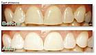 تبييض الأسنان بالسواك و الليمون الحامض فعالة