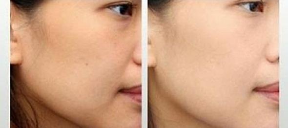 وصفة رائعة لتبييض الوجه من اول استعمال