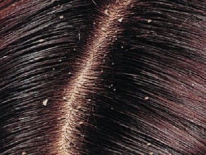 وصفة ضد قشرة الشعر